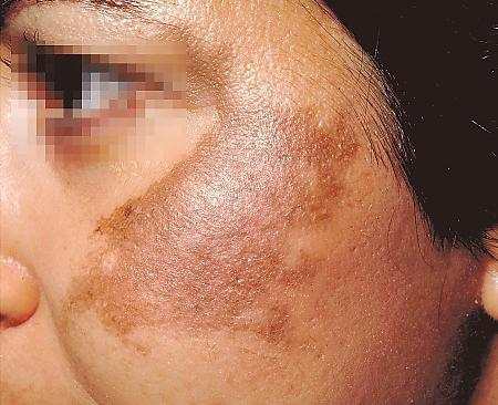 Cure Melasma at Home