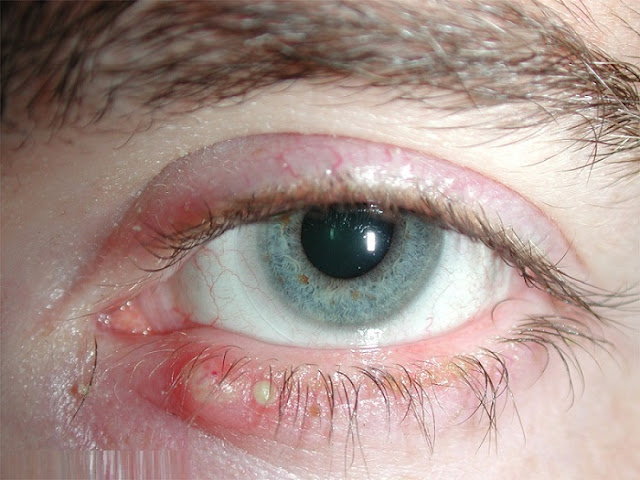 blepharitis-causes-sign-symptoms-prevention-and-its-homeopathic-treatment