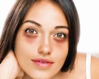 göz altı morlukları nasıl geçer