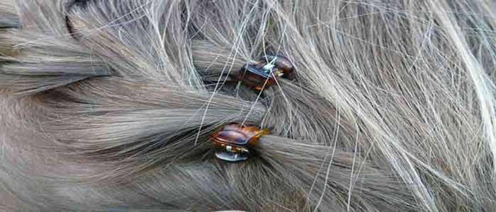Penyebab Uban Dini Pada Rambut