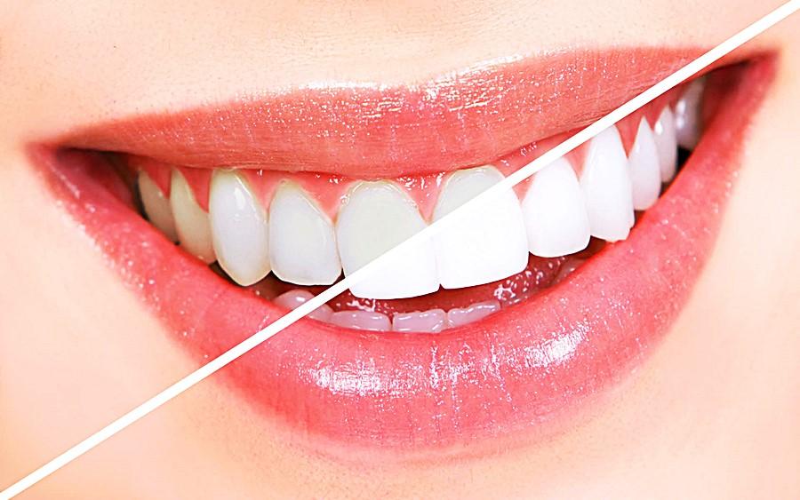 Mitos e Verdades: Clareamento Dental 😬