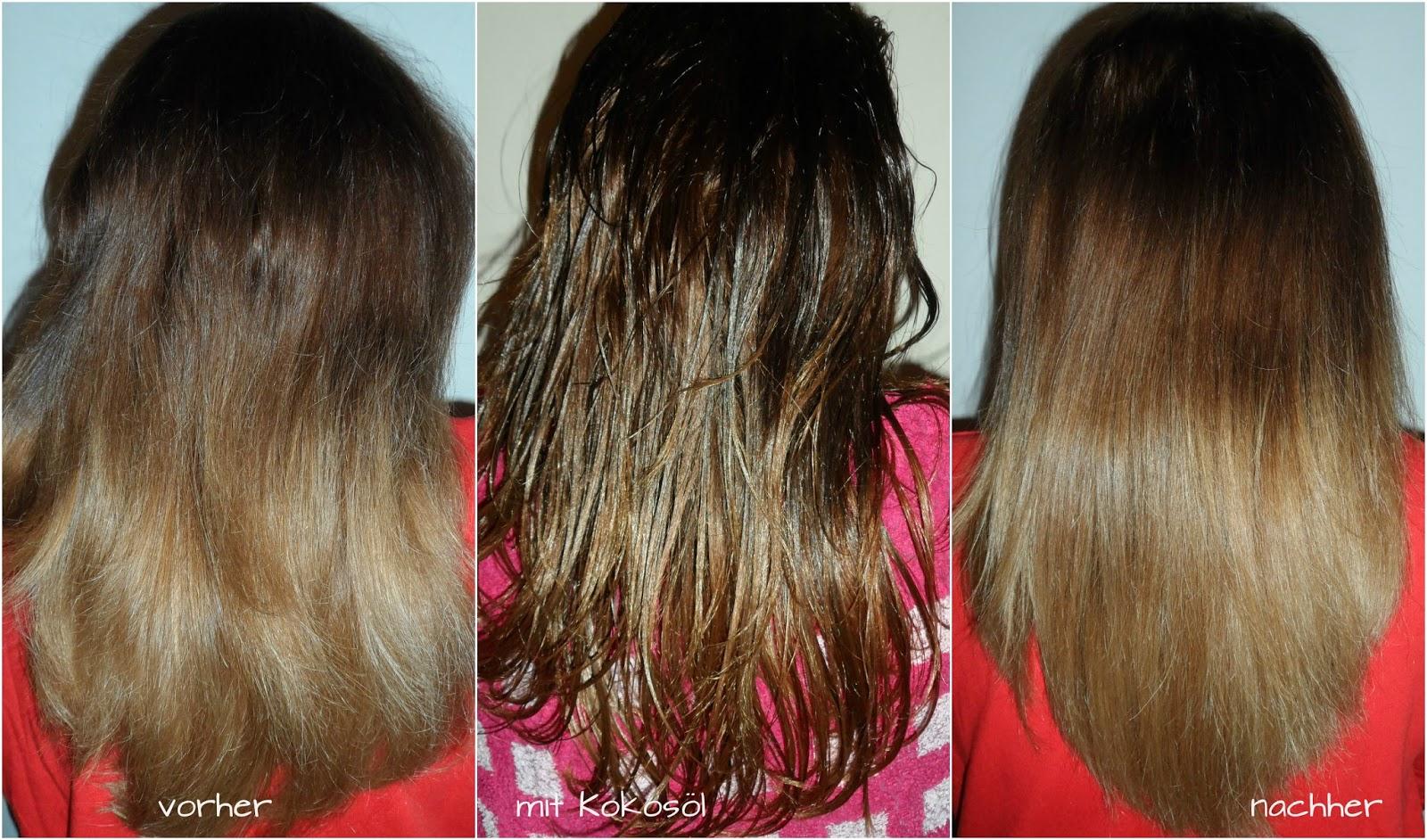 Das Haar prolabiert was multiple Sklerose zu machen