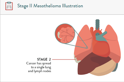 Stage 2 Mesothelioma: Why People Have Low Life Expectancy