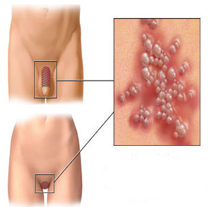 Can Genital Warts Be Cured: Can Genital Warts Be Cured in Men?