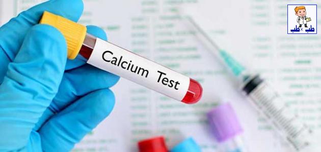ارتفاع نسبة الكالسيوم في الدم