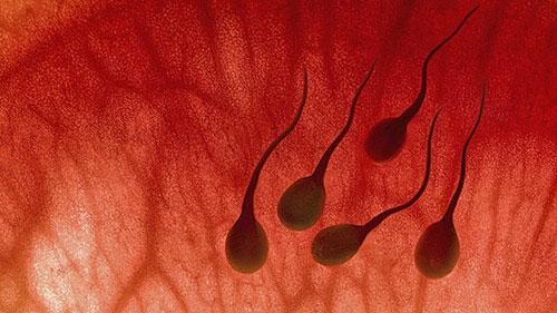 Xuất tinh có máu, dấu hiệu bệnh gì?