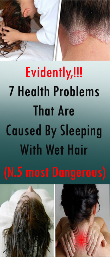7 Health Problems That Are Caused By Sleeping With Wet Hair #healthandfitness