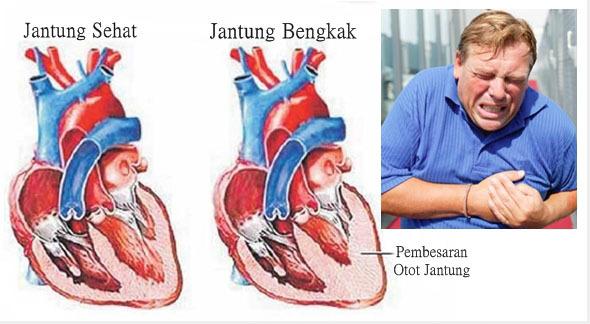 Cara Mengobati Kardiomegali (Jantung Bengkak) Secara Alami