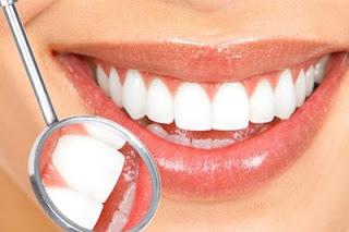 8 Hal yang Harus Dihindari Supaya Gigi Sehat , Kuat dan Putih