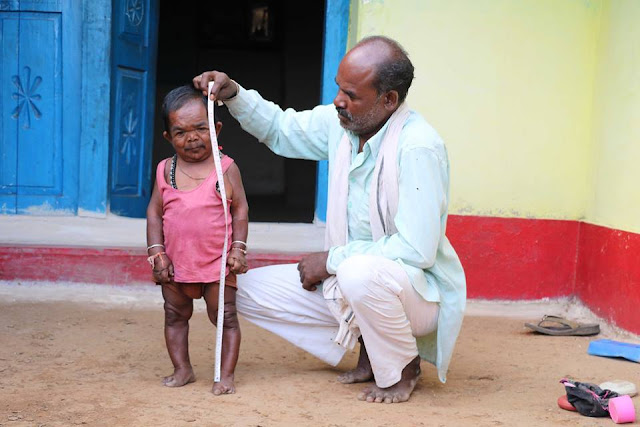 50-year-old Indian man is 29 inches tall over mysterious reason