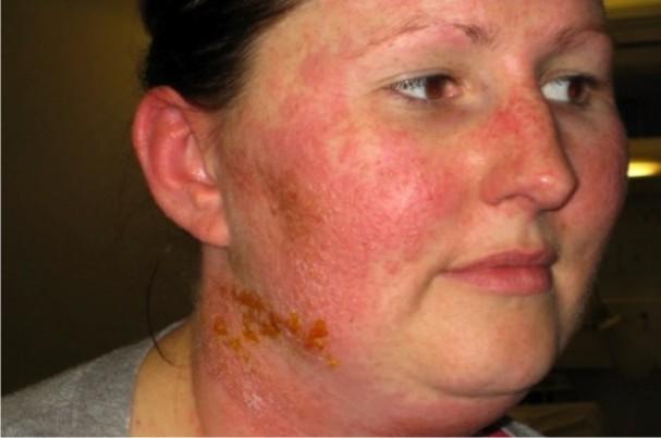 Baby Orange Food Allergy