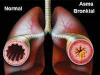 Cara Mengobati Penyakit Asma Secara Alami tanpa adanya efek samping