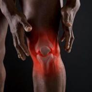 Obat Radang Sendi Lutut
