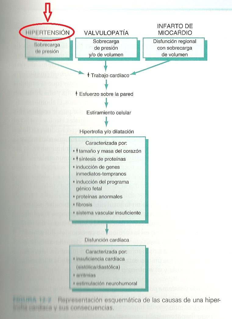 Presión arterial 200/120 causas