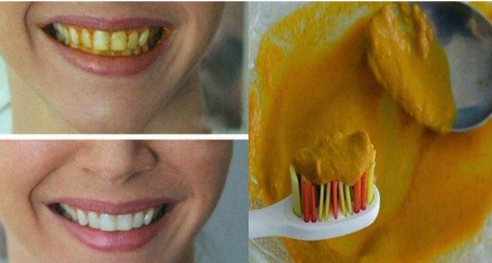 Tips Memutihkan Gigi Lewat Cara Yang Lain Menggunakan Pasta Gigi