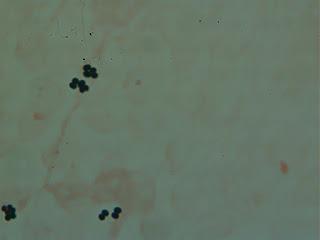 المكورات العنقودية المذهبة Staphylococcus aureus