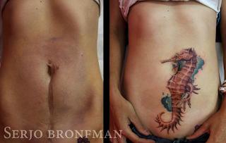 tatuaje cicatriz abdomen