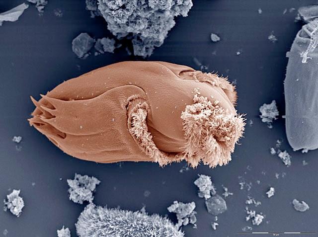 Protozoa in cow's rumen