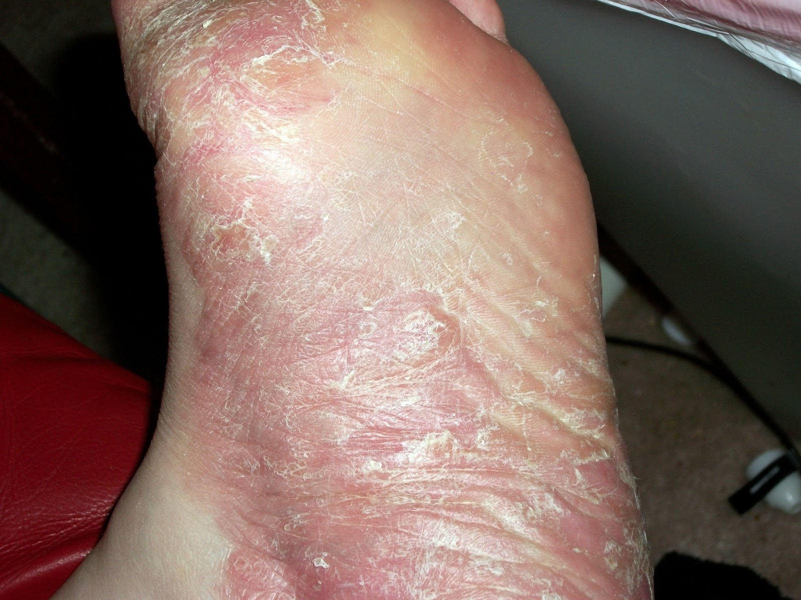 Plantar Pustular Psoriasis Natural Treatment