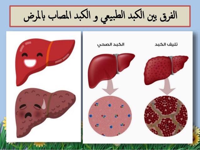 فيروس الكبد الوبائي C
