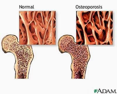 perbezaan antara tulang normal dan osteoporosis