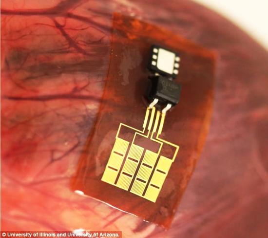 heart beat mobile battery