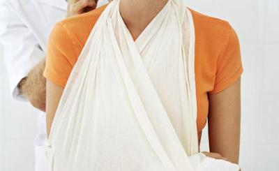 Pengobatan Patah Tulang Lengan Tanpa Operasi