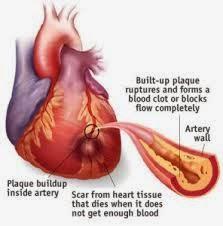 Cara Mengatasi Penyakit Jantung Koroner