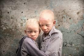"""Patricia Willocq, """"Blanc Ebène"""",Exhaucé et Elli ,faux-jumeaux, albinos"""