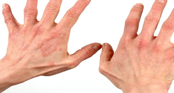 obat gatal-gatal pada seluruh tubuh