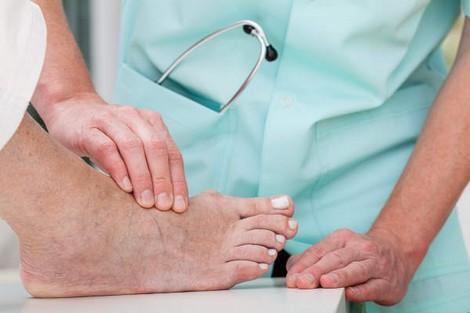 جمعية تحذر من خطر بتر أرجل مصابين بالسكري نتيجة الإهمال