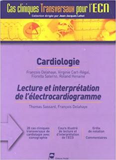 Cardiologie : Lecture et interprétation de l'électrocardiogramme 51u%252B10rNsiL._SX361_BO1%252C204%252C203%252C200_%2B%25281%2529