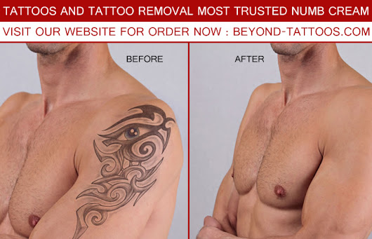 Tattoos and Tattoo Removal - Most Trusted Numb Cream