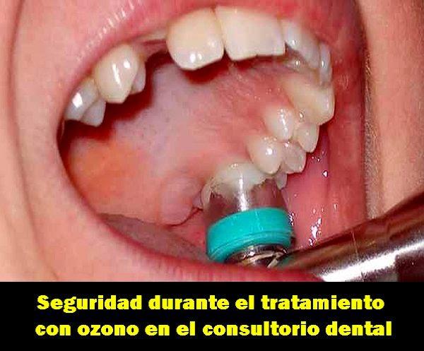 PDF: Seguridad durante el tratamiento con ozono en el Consultorio Dental