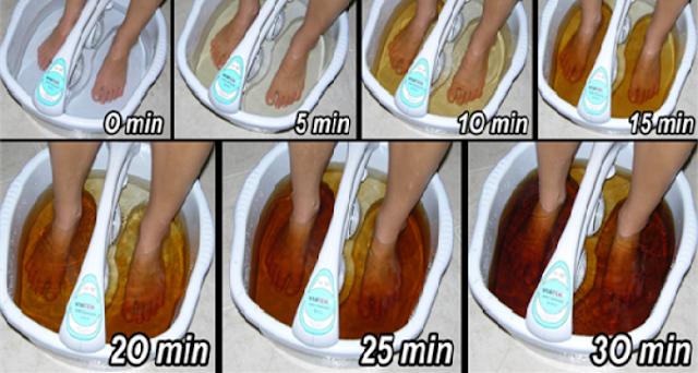 شاهد كيف  يمكنك التخلص من سموم الجسد عن طريق القدم! فقط في 30 دقيقة