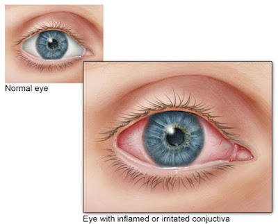 Appearance of normal eye compared to pink eyes