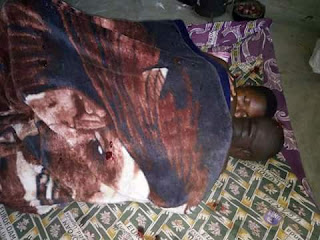 PHOTOS Husband Stuck In A Woman's Private Part After S3x