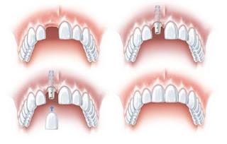 Phục hình răng cửa với phương pháp nào tốt nhất ?