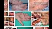 Jenis Obat Sipilis Di Apotik Yang Cepat Menyembuhkan
