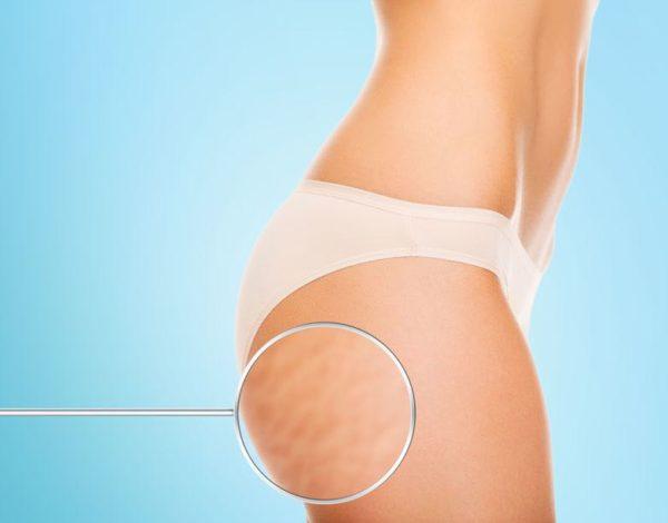 Comment éliminer la cellulite au niveau des fesses ?