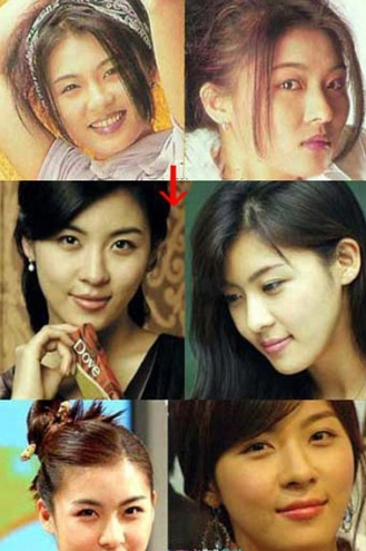 Ha Ji Won Plastic Surgery Before And After Nose Job And