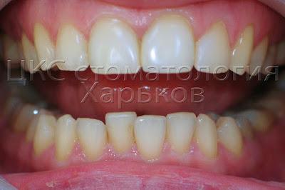небольшие аномалии положения зубов нижней челюсти