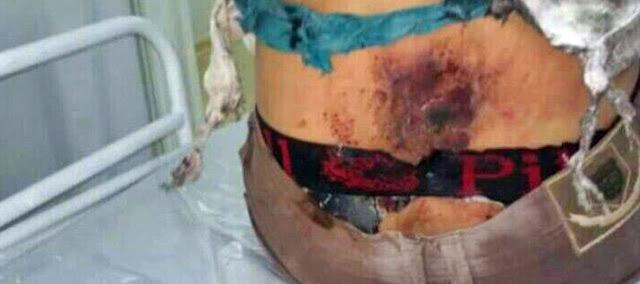 Palmital: Jovem sofre ataque de bomba