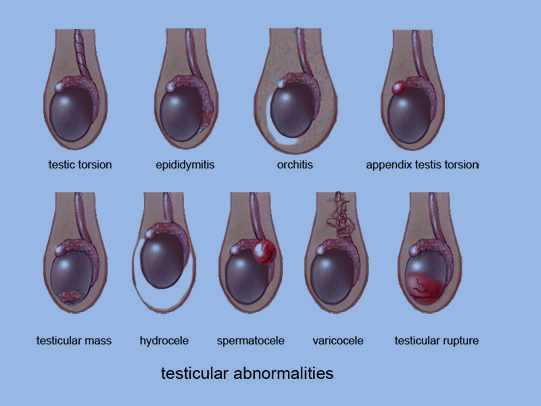 epididymitis - scrotal pain | epididymitis symptoms, Cephalic Vein