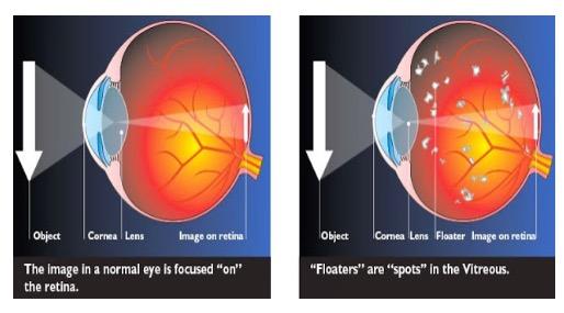Apa Sebenarnya 'Ulat' yang Terbang di Mata Anda Ini? Ini Penjelasannya.