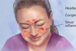 Cara Menyembuhkan Sinusitis Tanpa Operasi