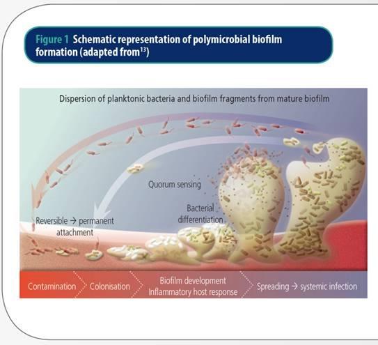 傷口大師: 生物膜如何形成?
