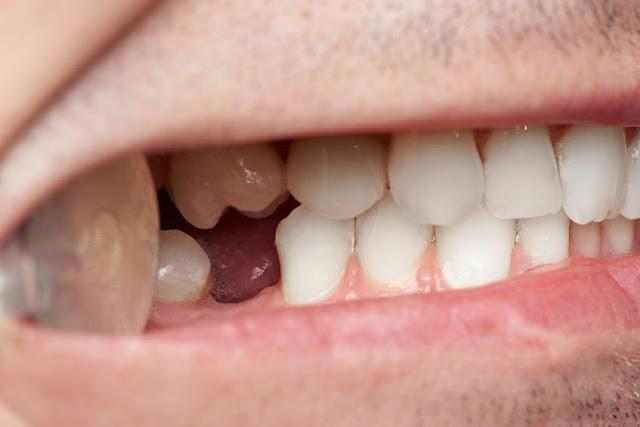 brak zęba