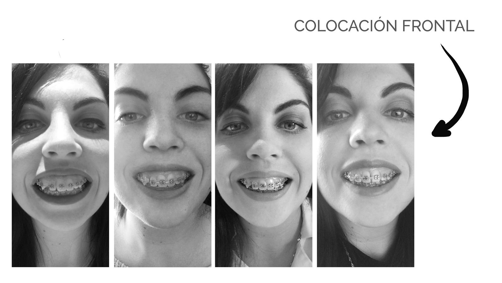 Evolución y resultado de 4 años de ortodoncia