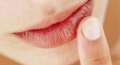 Penyebab dan Cara Mengatasi Bibir Hitam